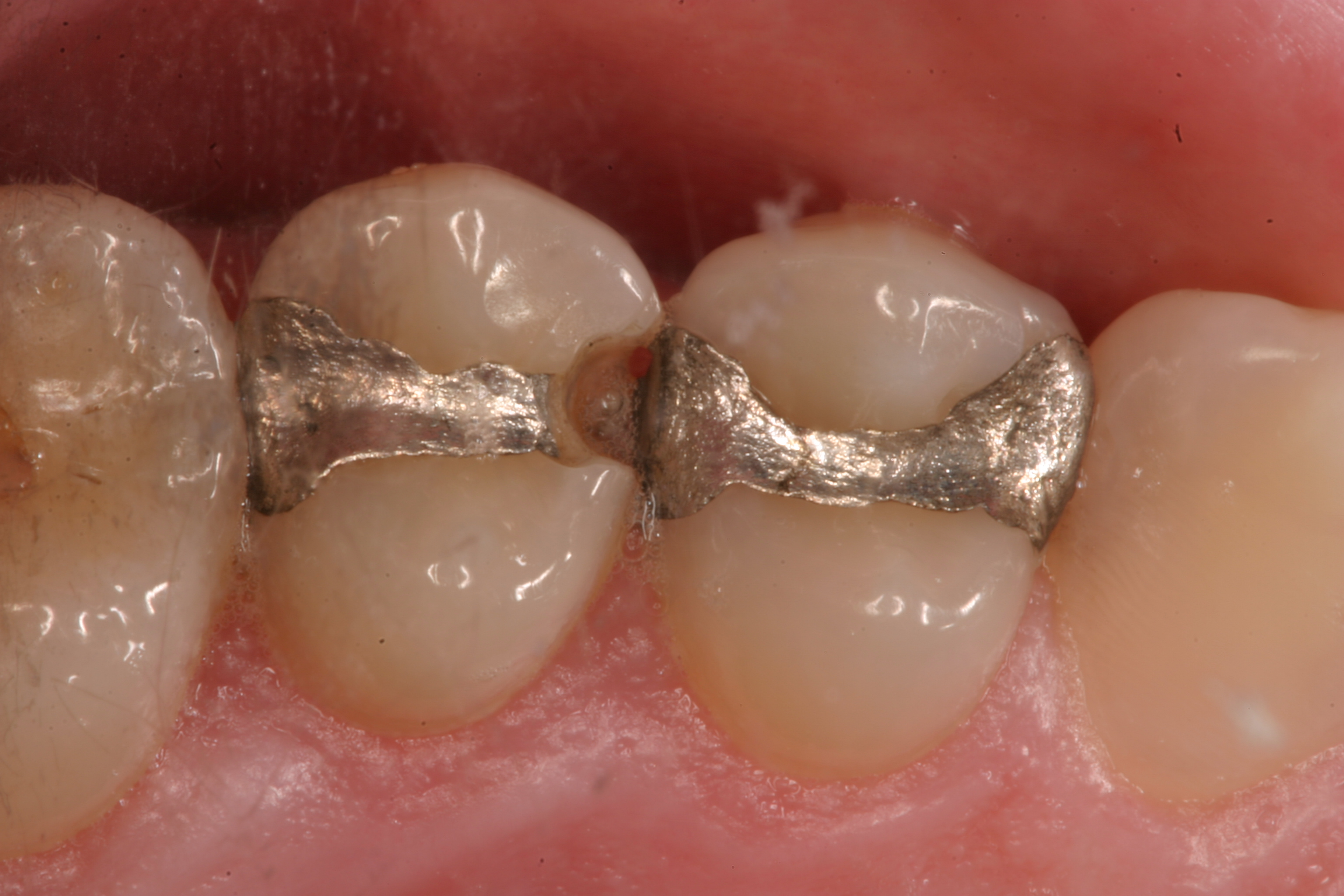 crack on tooth filling
